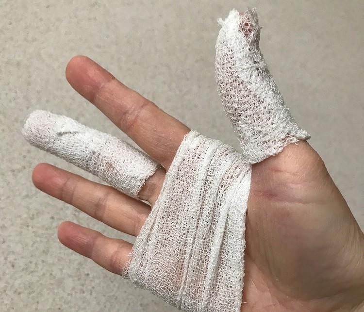 Во время одного из репортажей спецкор получила ожог обеих кистей рук от санитайзера,