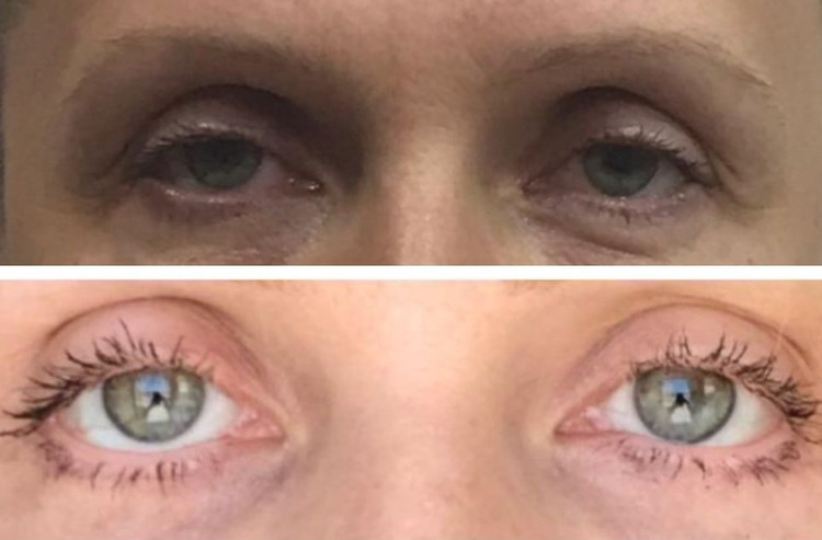 Глаза сибирячки до операции были симметричными, а после из-за вывернутого века стали отличаться. Фото: личный архив.