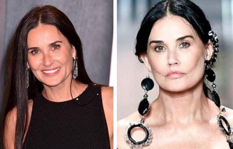 Недавно Деми Мур вышла на модный подиум с обновленным лицом (фото справа), судя по которому она чересчур увлеклась пластической хирургией. Фото из открытых интернет-источников.