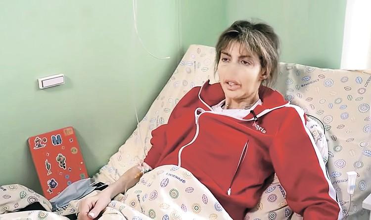 Алиса говорит, что лишилась носа из-за аутоиммунного заболевания. Фото: Канал «Россия 1»
