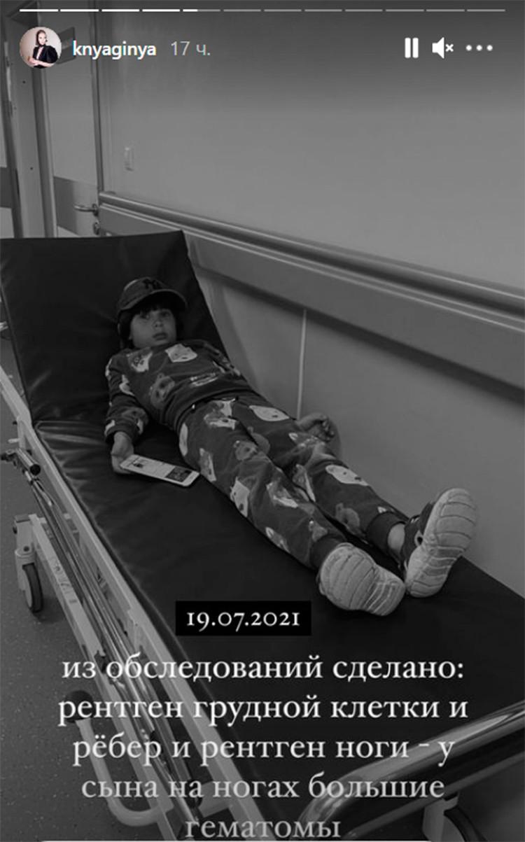 Мальчик попал в больницу с сотрясением. Фото: www.instagram.com/stories/knyaginya/